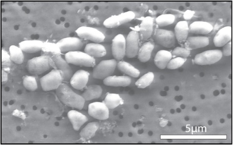 The bacterium GFAJ-1 grown in arsenic