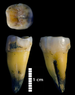 A lower molar of one of the modern humans discovered in Bacho Kiro Cave