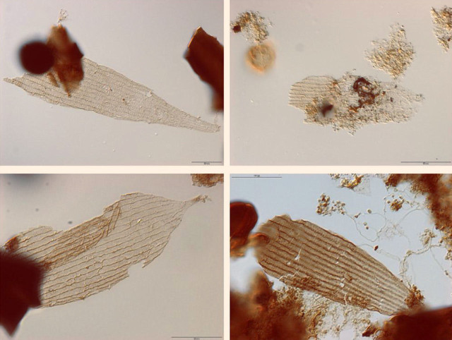 Fossil scales of Jurassic Butterflies and Moths (Image courtesy van Eldijk et al.)