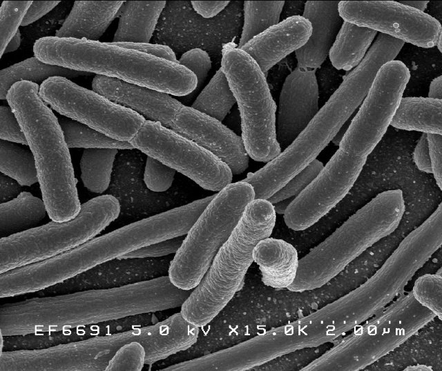 Bacteria of the species Escherichia Coli seen wih an electronic microscope (Image Rocky Mountain Laboratories, NIAID, NIH)