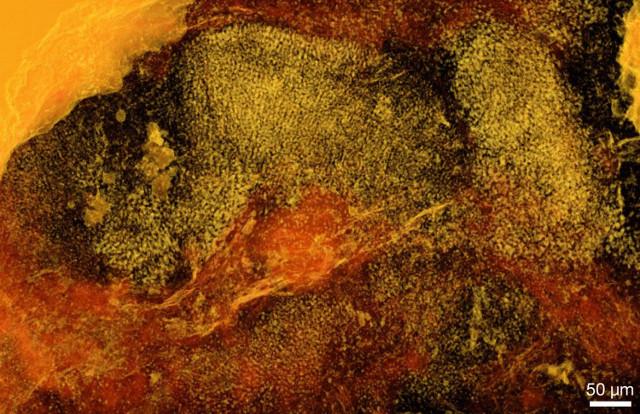 Ramathallus lobatus tomography (Image courtesy Stefan Bengtson et al.)