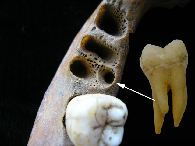 Tooth socket for a three-rooted molar (Image courtesy Christine Lee. All rights reserved)